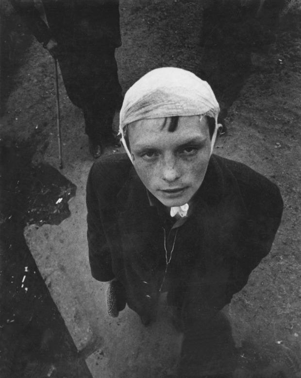 Boy with bandaged head, by Victor Ershov 1990